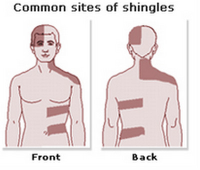 numbness and tingling-sites of shingles