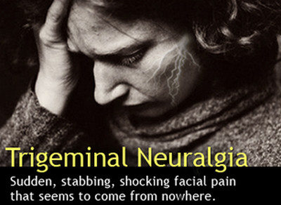 numbness and tingling-tigeminal neuralgia