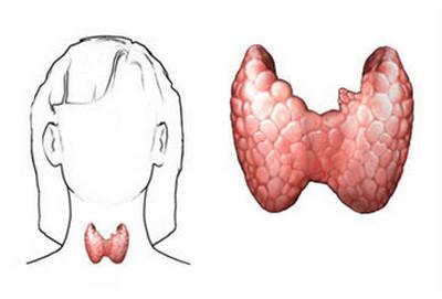 Cretinism-thyroid gland