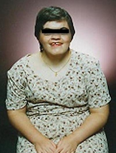 cornelia de lange syndrome pic1