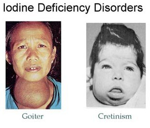iodine deficiency diseases essay The essay noninfectious diseases includes a  deficiency diseases have  medical professionals are charged with identifying disease, discovering diseases,.