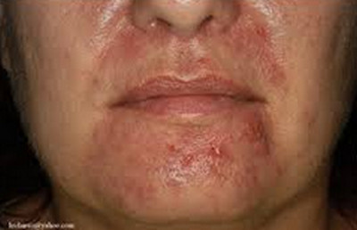 Infected Hair Follicle-perioral foliculitis