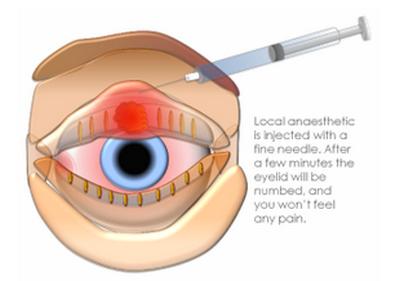 eye cyst-I & C 1