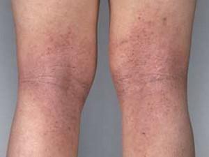 how you get eczema