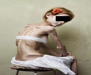 bullimia pictures