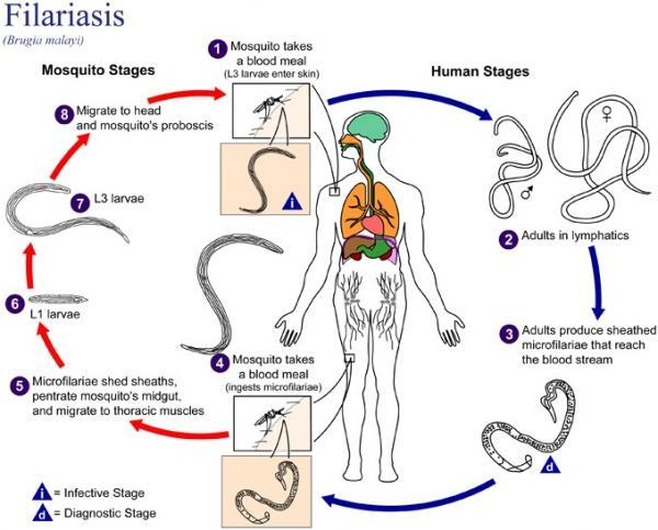 elephantiasis lymphatic filariasis cycle