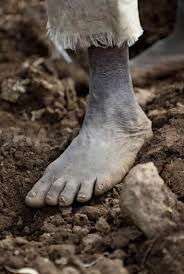 elephantiasis podoconiosis in clay soils