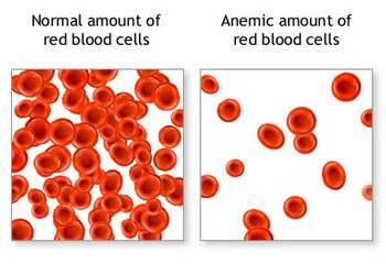 RED BLOOD CELLS Anemia