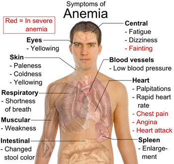 Signs And Symptoms Of Anemia