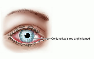 allergic conjunctivitis eye
