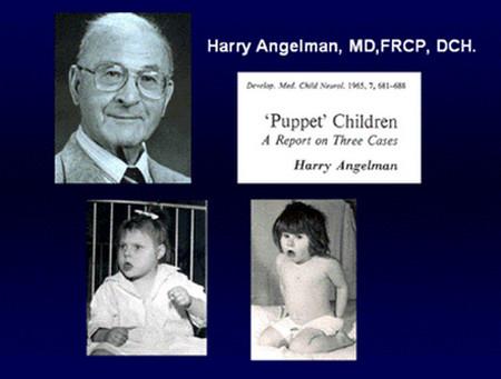 Angelman Syndrome
