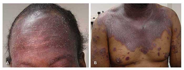skin rash looks like pimples - MedHelp