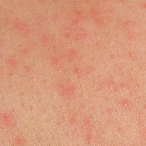 HIV (AIDS) Rash - Pictures, Symptoms and Treatment