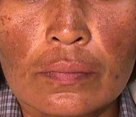 Melasma skin rash images