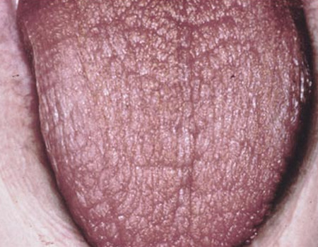 xerostomia dry mouth pictures
