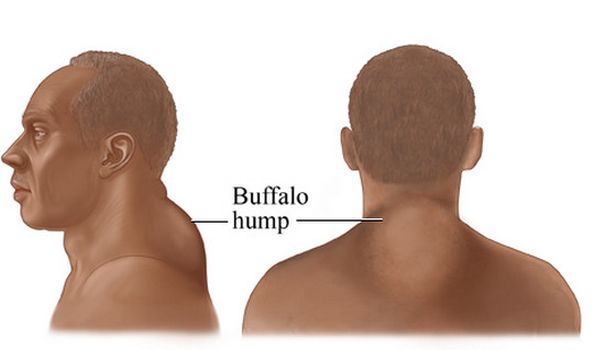 Buffalo Hump Photos