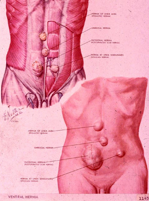 Ventral Hernia pictures