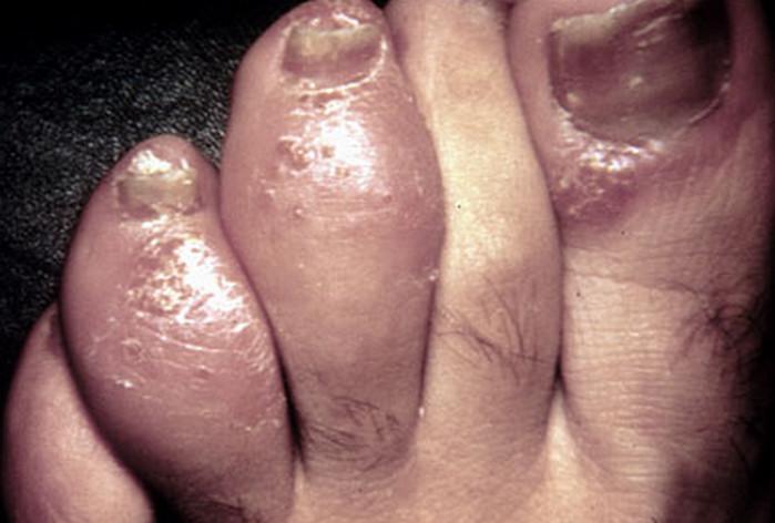 Dactylitis