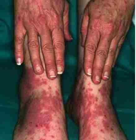 Lichen Planus Pics of hands, feet