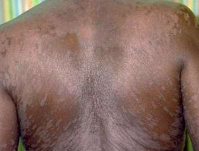Tinea versicolar on back picture