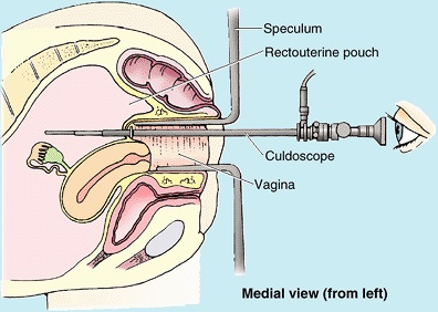 culdoscope