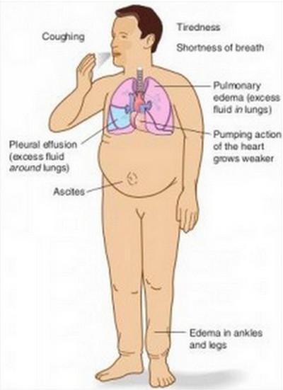 Hypervolemia-Symptoms