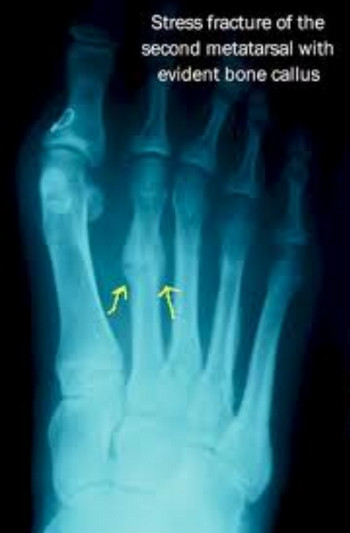 X ray showing Stress Fracture of the second metatarsal