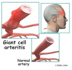 temporal arteritis and normal artery