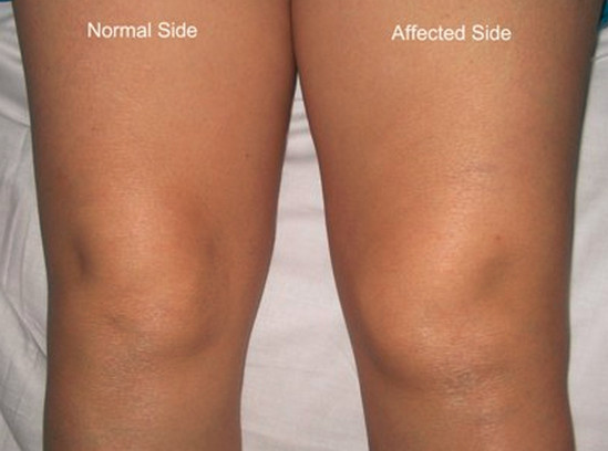 Swollen Knee picture