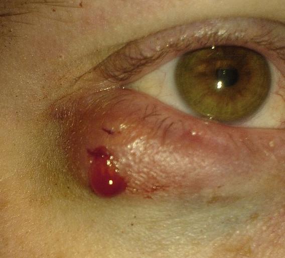 Meibomian Cyst bleeding