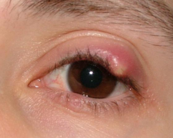 Meibomian Cyst Pictures Causes Treatment Removal And