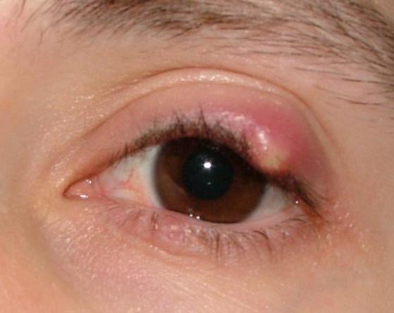Meibomian Cyst image
