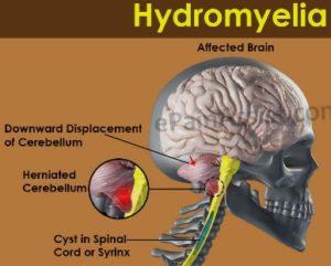 Hydromyelia