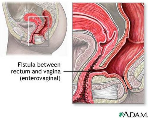 rectovaginal fistula