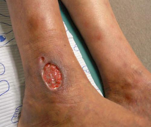 Venous Stasis Ulcer