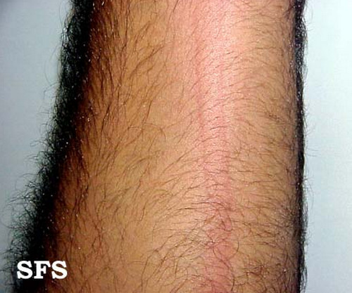 dermatographism redness