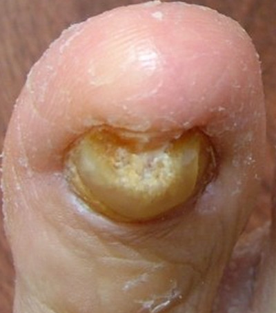 Yellow Toenail - Syndrome, Causes, Remedies and Treatment.