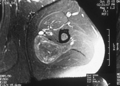 Axial gadolinium contrast MRI study that shows slight perfusion through the hibernoma