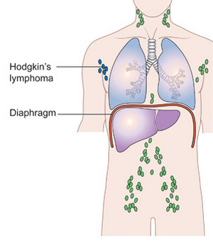 Hodgkins disease stage 1