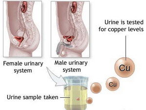 Wilson's disease urine test