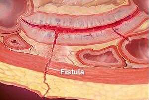 crohns fistula