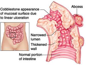 crohns pathophysiology