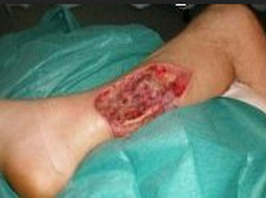 flesh eating bacteria image 1