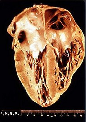 heart muscle with chagas disease