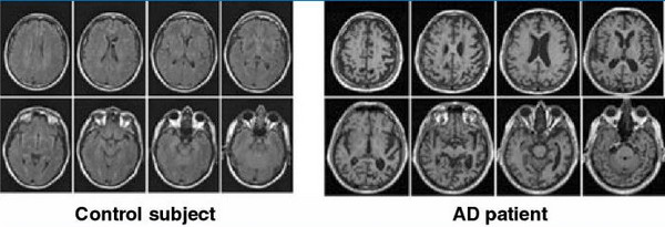 mri image alzhiemers disease
