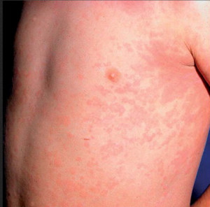 rash in stills disease 4