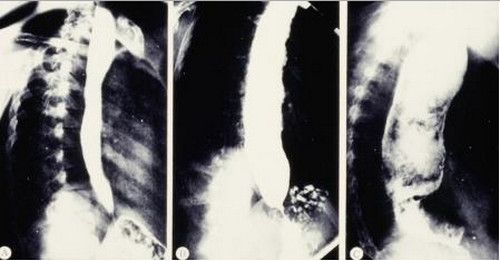 x ray megacolon with chagas disease