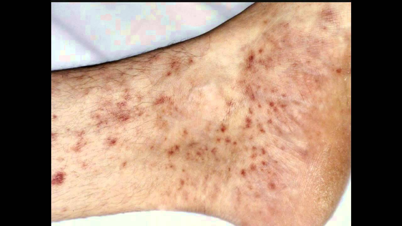 Itchy bleeding rash around anus