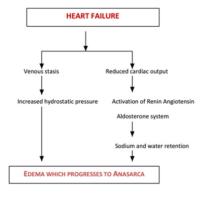 Anasarca in heart failure photo