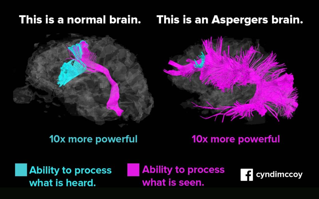 Asperger brain v normal brain